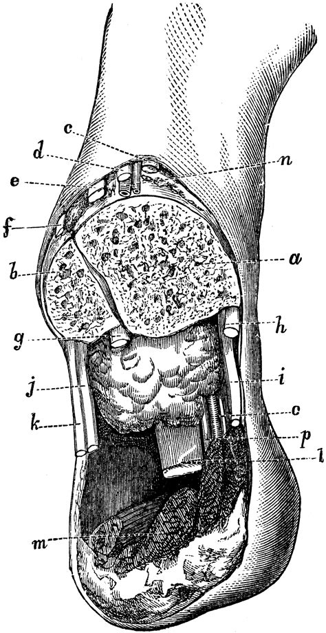 Syme's Amputation at the Ankle   ClipArt ETC
