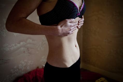 Anorexia: Brain abnormalities in area related to insight
